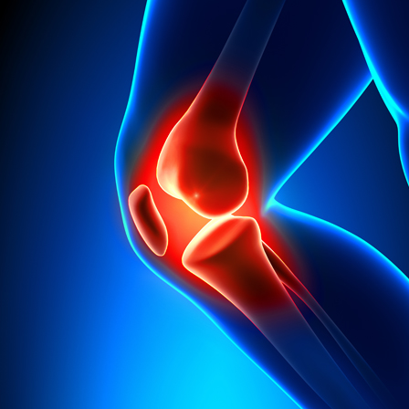What Is a Cortisone Shot?