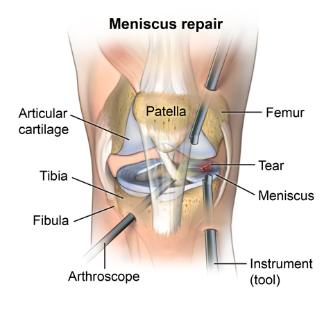 Anterior view of arthroscopic meniscus repair of the knee. PMuscsk_20140310_v0_002; SOURCE: PMuscsk_20140310_v0_002_Layers.psd; ortho_arthro-knee-meni_proc_1.ai; ortho_arthro-knee-meni_proc_2A_layers.psd; rendered from zygote model, normal_knee_separate.mb; 3D_orthosurg_arthros-knee-meniscus_normal_anatomy;