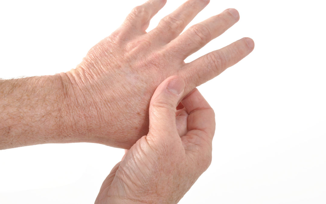 Signs of Rheumatoid Arthritis Can Show Up Long Before Diagnosis