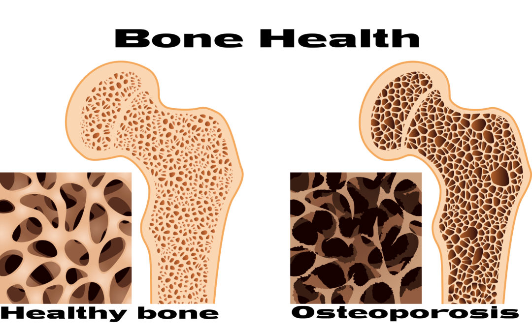 It's Never Too Soon to Safeguard Your Bones