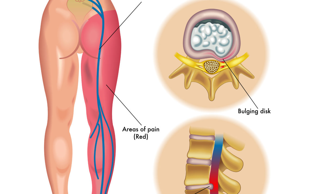 Health Tip When To Call Your Doctor If You Have Lower Back Pain