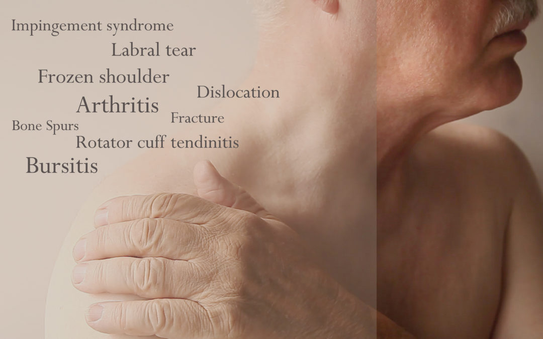 An Orthopedic Specialists' Guide to Frozen Shoulder