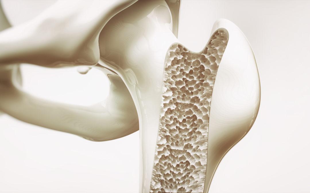 Vitamin D Supplements Won't Build Bone Health in Older Adults: Study