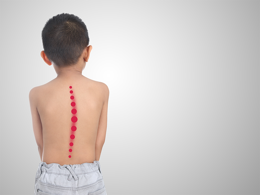 One-Third of U.S. Kids Have Back Pain, Study Says