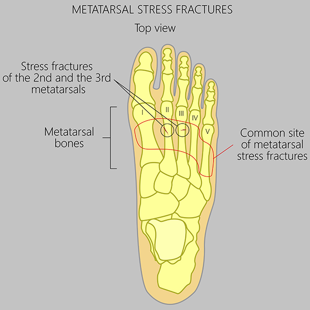 Health Tip: Preventing Stress Fractures