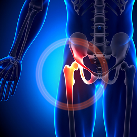 Health Tip: Reduce Your Risk of Hip Fracture