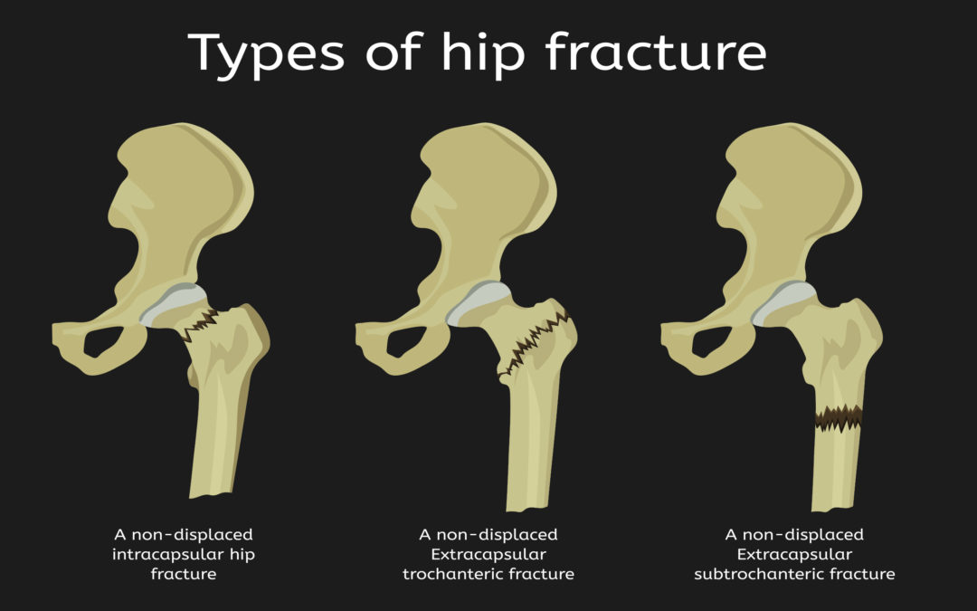 Don't Delay Hip Fracture Surgery. Here's Why