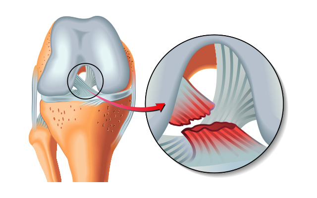 ACL Surgery Preparation and Recovery