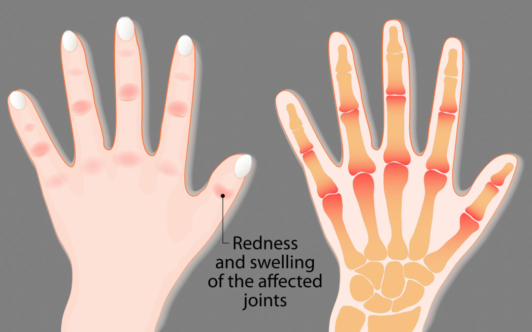 Too Much or Too Little Weight May Worsen Rheumatoid Arthritis