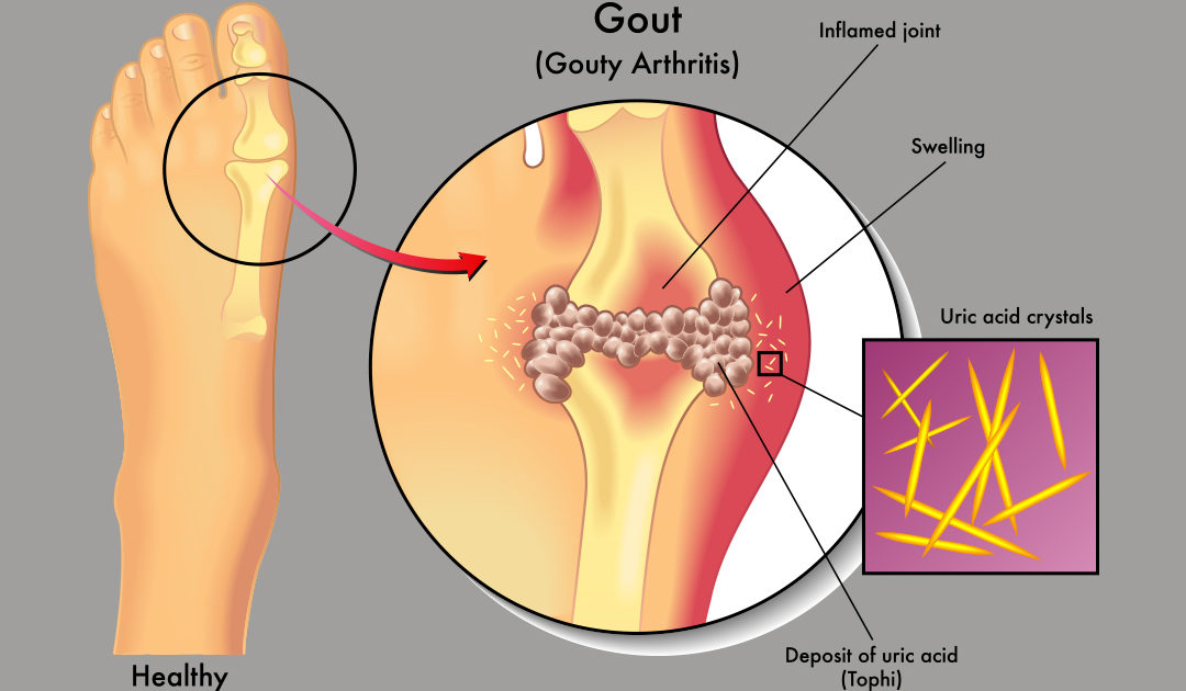 Younger Gout Patients Have Higher Odds for Blood Clots