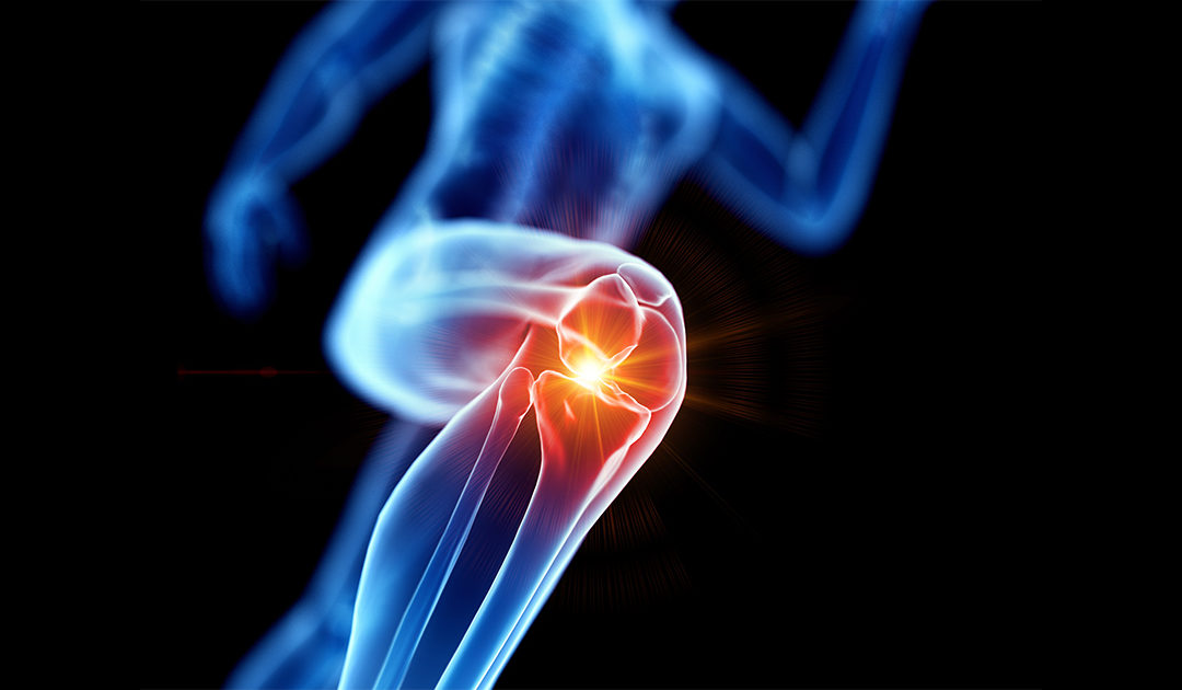 Vigorous Exercise Safe for Those at Risk of Knee Arthritis