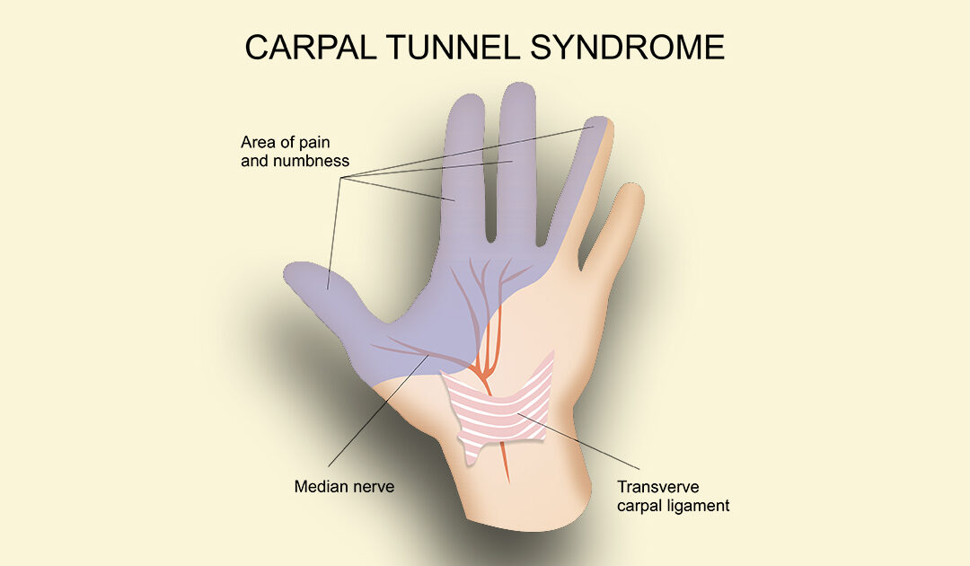 Not Just Keyboards: Many Types of Workers Can Develop Carpal Tunnel