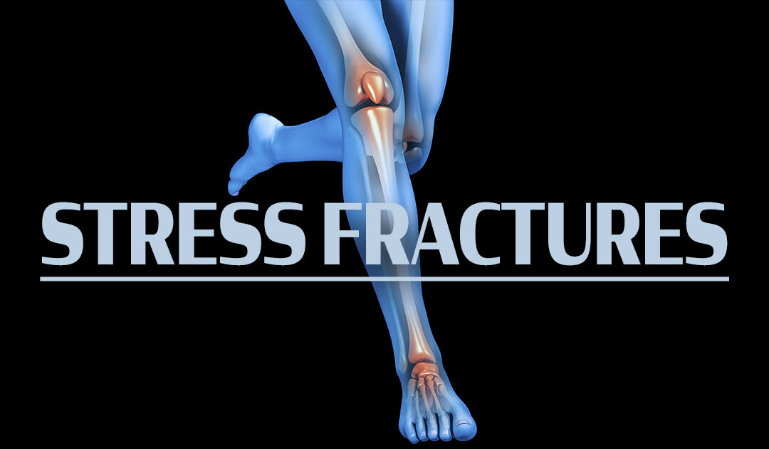 Spring Activity Can Sometimes Bring Stress Fractures