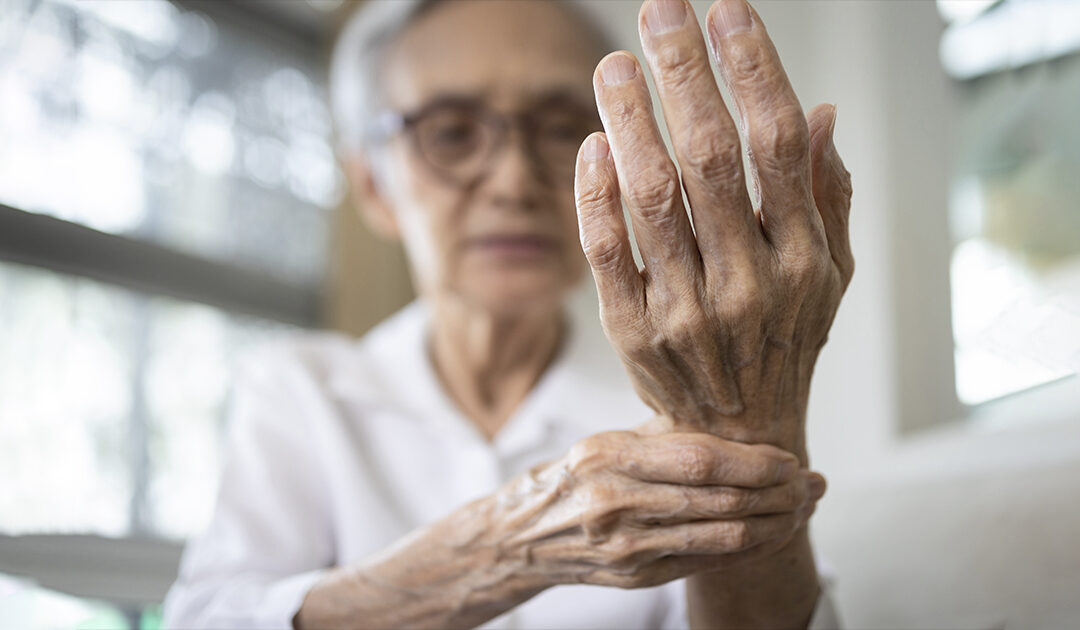 How to Manage Arthritis Pain Without Surgery